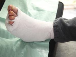 Bandaged Foot