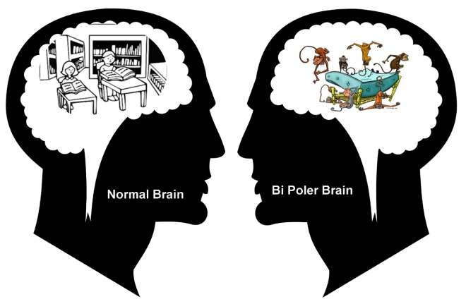 Normal vs Bipolar Brain